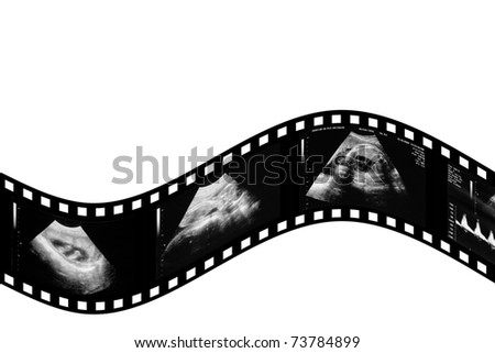 child in the picture ultrasound - stock photo