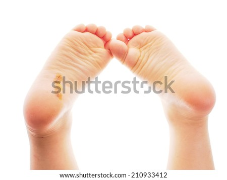 Child showing feet with a fresh wound underneath the right heel towards white - stock photo