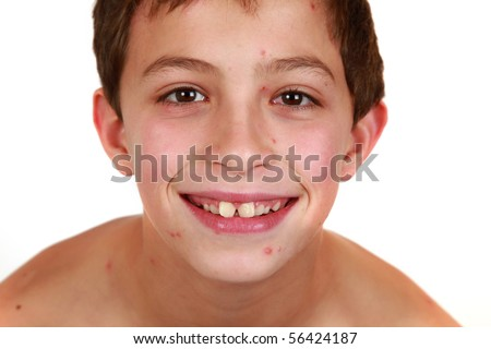 Child with Chickenpox close up of face - stock photo