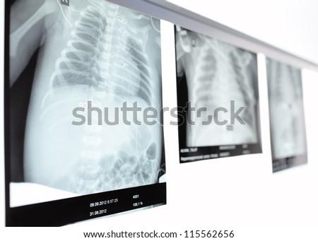 Children's chest x-ray. - stock photo