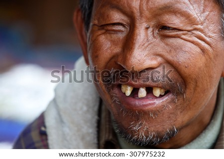 CHIN STATE, MYANMAR - JUNE 18 2015: Local weathered faced man with missing teeth in the Chin State Mountainous Region, Myanmar (Burma) - stock photo