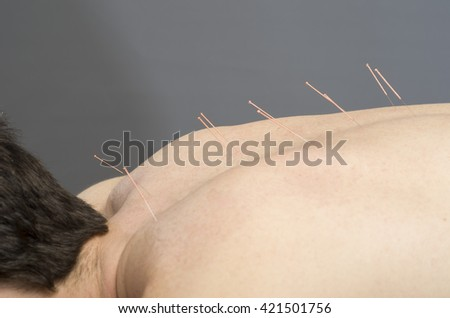 Chinese medicine doing acupuncture to man patient - stock photo