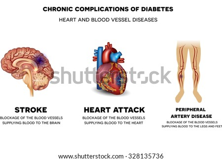 Chronic complications of Diabetes. Heart and blood vessel problems, Stroke, Heart attack and peripheral artery disease.  - stock photo