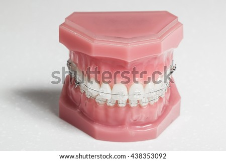 Clear braces - invisible brackets for teeth straightening - stock photo