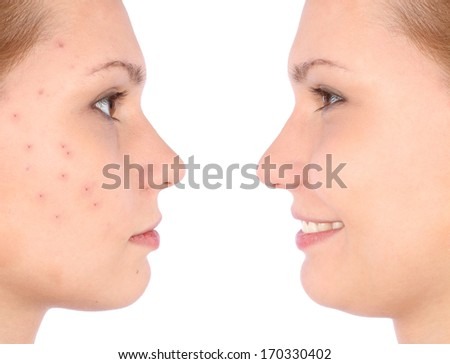 Clear skin concept with portrait of young girl - stock photo