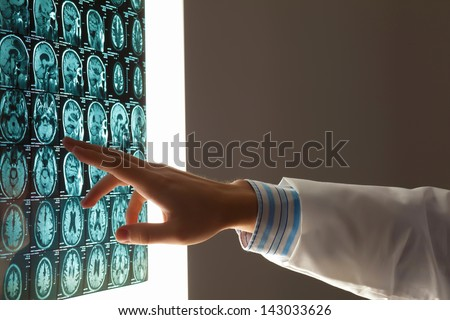 Close-up image of doctor's hand pointing at x-ray results - stock photo