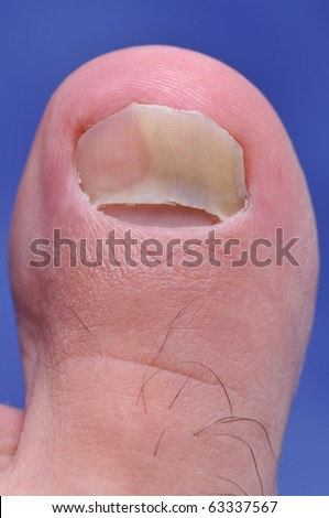 Close up image of left foot toe nail suffering from fungus infection - a series of FUNGI NAIL images. - stock photo