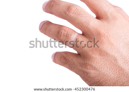 Close up mark of ring on finger isolated on white background
