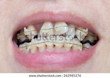 Close-up mouth of crooked teeth with braces  - stock photo