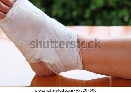 Close-up of a bandage wrapped on injured ankle. - stock photo