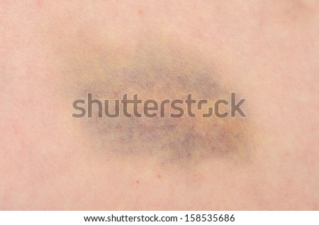 Close up of a bruise on a persons skin  - stock photo