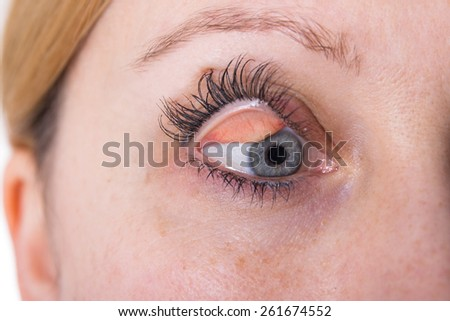 Close up of a female eye with a disfigured eyelid - stock photo