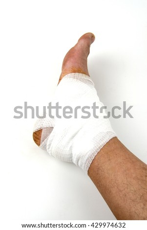 Close-up of a human leg wrapped with white bandage.  - stock photo