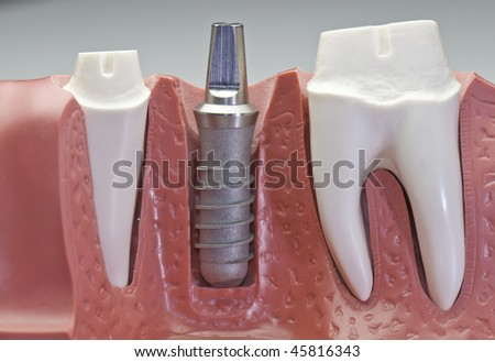 Close up of a implant model. It shows how the implant are put in and side molars to have crowns on them.