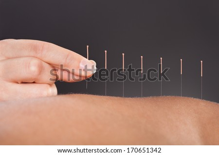 Close-up Of A Person Getting An Acupuncture Treatment At Spa - stock photo