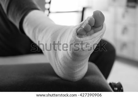 broken foot stock images royaltyfree images  vectors