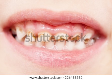 close up of bad baby teeth
