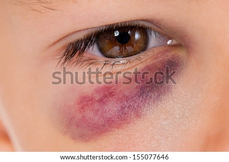 Close-up of boy eye with real bruise