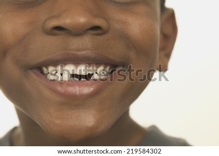 Close up of boys teeth - stock photo
