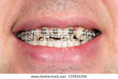 Close-up of braces on the teeth of the upper jaw with unshaven men - stock photo