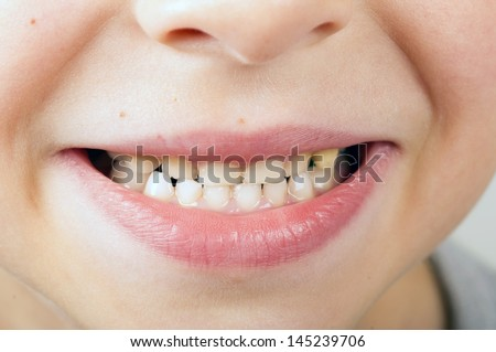 close up of childs smile with teeth - stock photo