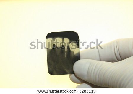 close up of dentist looking at xray - stock photo
