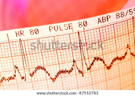 Close up of ECG print - stock photo