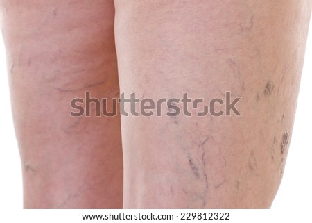 Close-up of legs with varicose veins - stock photo