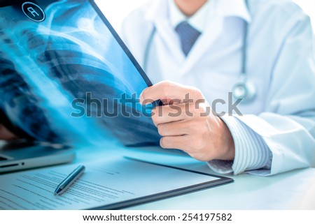 close up of male doctor holding x-ray or roentgen image - stock photo