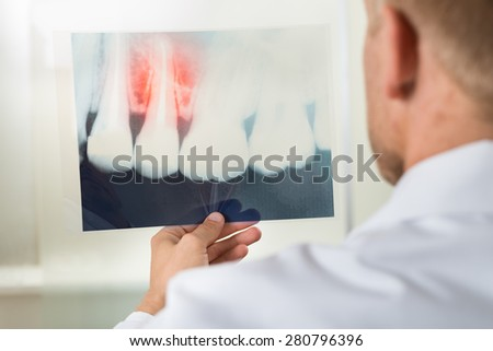 Close-up Of Male Doctor Looking At Teeth X-ray - stock photo