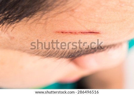 Close up of painful wound on forehead from deep cut