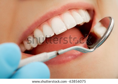 Close-up of patient?s open mouth during oral checkup with mirror near by - stock photo