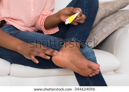 Close-up Of Person's Hand Applying Cream On Feet - stock photo