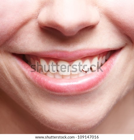 Close-up of smiling female mouth with bright teeth showing - stock photo