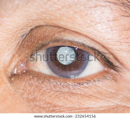 Close up of the eye during ophthalmic examination. - stock photo