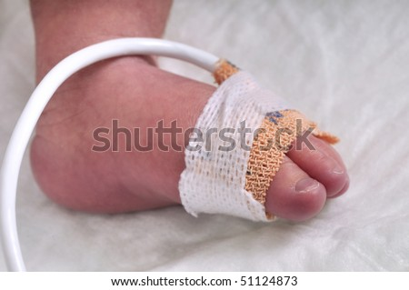 Close up of the foot of a premature baby boy - a series of BABY INTENSIVE CARE related pictures. - stock photo