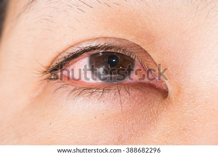 close up of the marginal keratitis during eye examination.