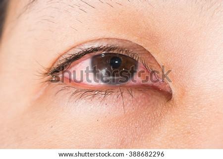close up of the marginal keratitis during eye examination. - stock photo