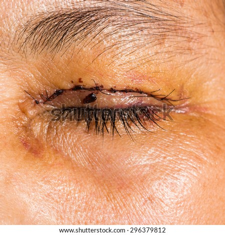 Close up of the post blepharoplasty during eye examination.