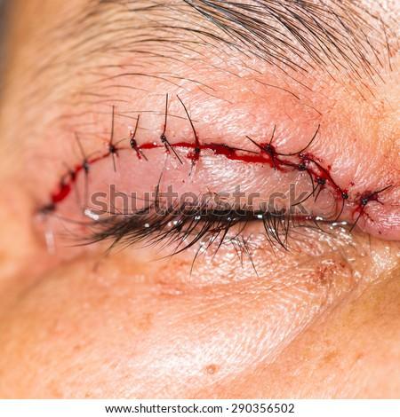 close up of the post blepharoplasty in blepharochalasis during eye examination. - stock photo