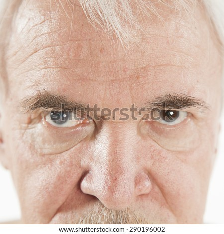 close up of the senile cataract during eye examination - stock photo