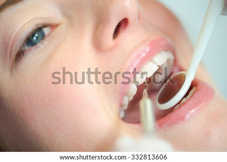 Close-up of woman's mouth at the dentist - stock photo