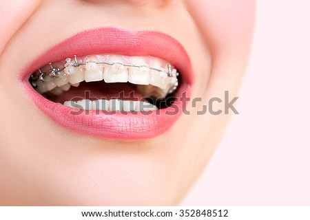 Close up open mouth with Ceramic and Metal Braces on beautiful Teeth. Broad Smile with Self-ligating Brackets. Orthodontic Treatment. Woman Smiling Showing Dental Braces.