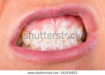 Close up photo of teeth cleaning with toothpaste - stock photo