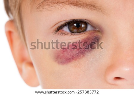 Close-up portrait of boy with bruise, isolated on white background - stock photo