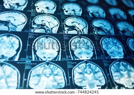 close series magnetic resonance scan human stock photo royalty free