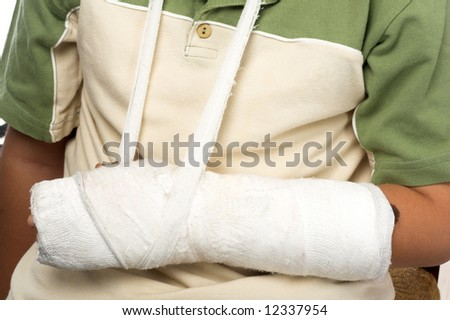close up shot of a boy with broken arm - stock photo