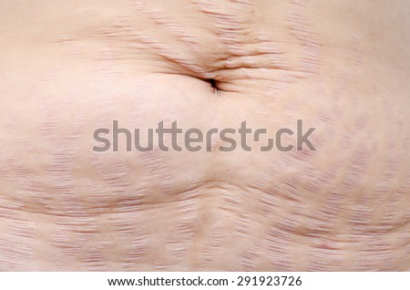 Close up stretch marks on Asian woman belly - stock photo