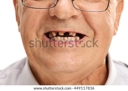 Close-up studio shot on a mouth of a senior man with a few broken teeth isolated on white background