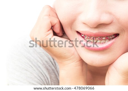 Close up woman smiling with Ceramic and Metal Braces on white background, beauty and healthy concept